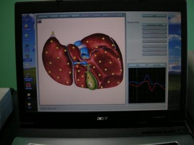 steatoza hepatica in medicina energo-informationala